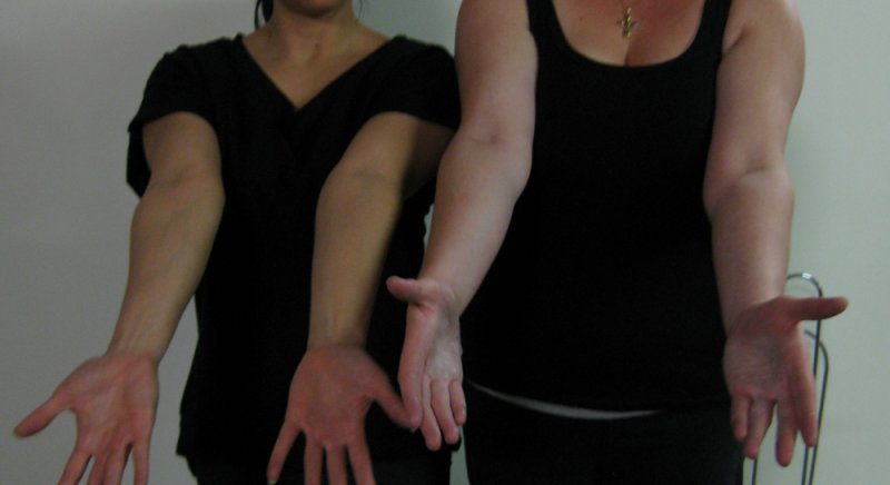 A comparison of normal rotation of the forearms and wrists with Chelsea's maximum range